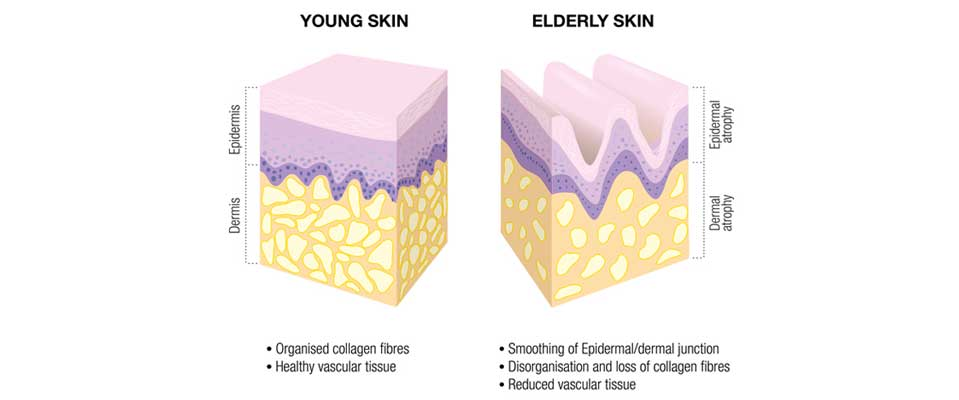 ABOUT COLLAGEN, YOUNG AND OLD SKIN