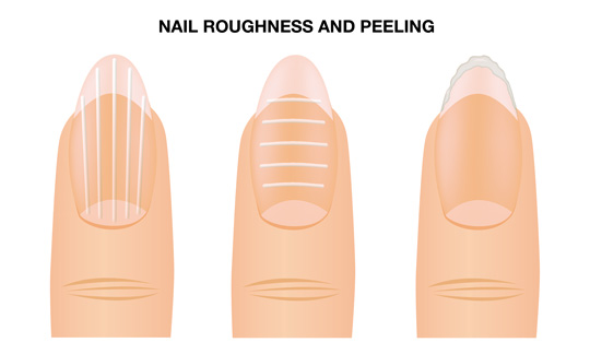 NAIL ROUGHNESS AND PEELING