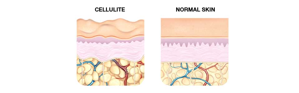 REDUCE CELLULITE CHART